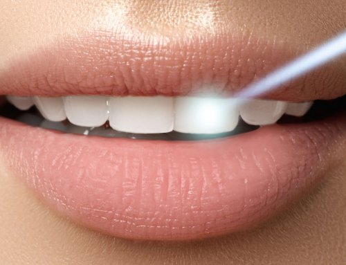 The Latest in Dental Laser Technology – No Needles Required