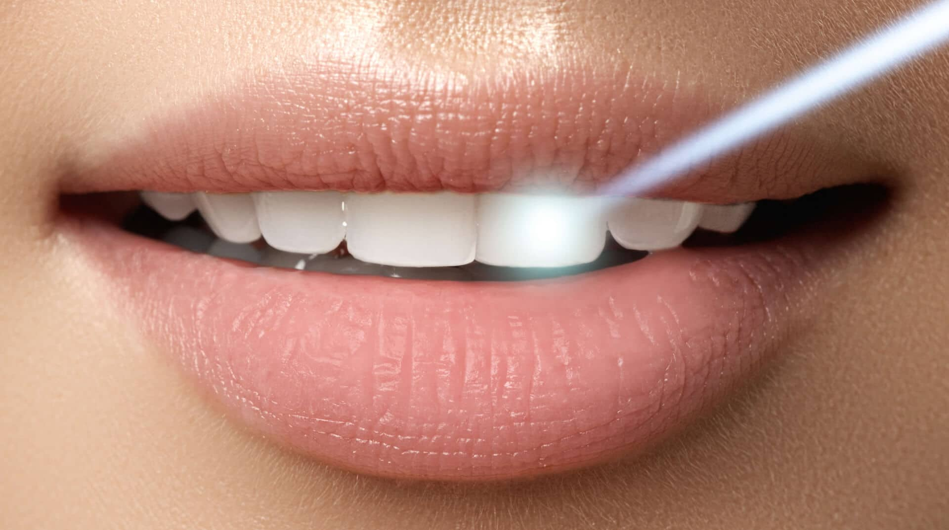 dental laser technology
